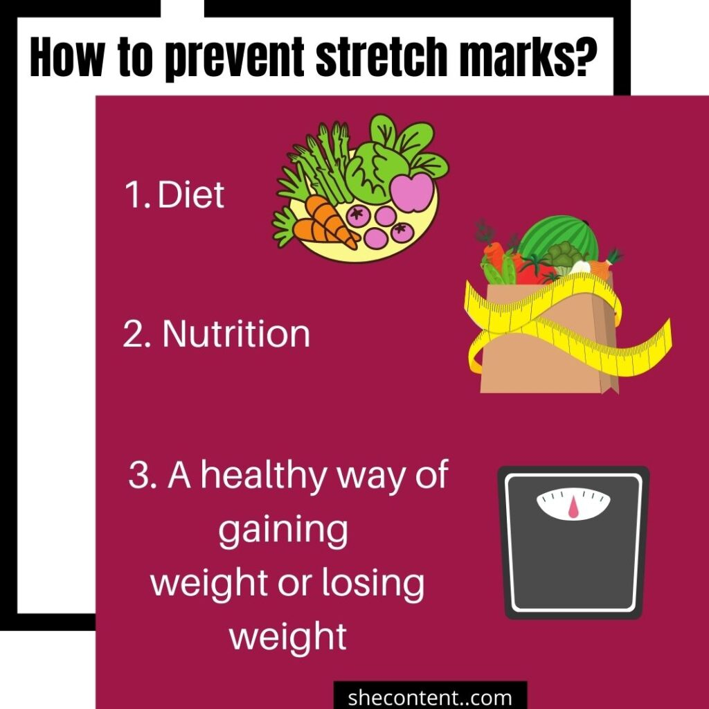 how to prevent stretch marks?